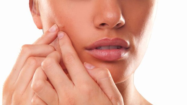 How to reduce the redness of acne