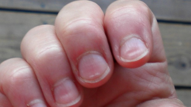 Why Do Kids Eat Their Finger Nails