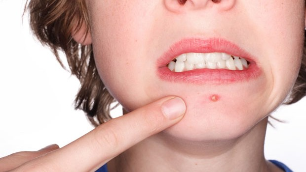 How To Get Rid Of Acne Vulgaris, Treatment & Remedies