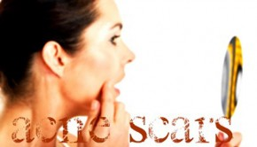 How To Conceal Or Cover Acne Scars