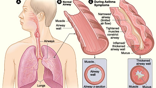 What Is Asthma Attack? Causes and Treatment