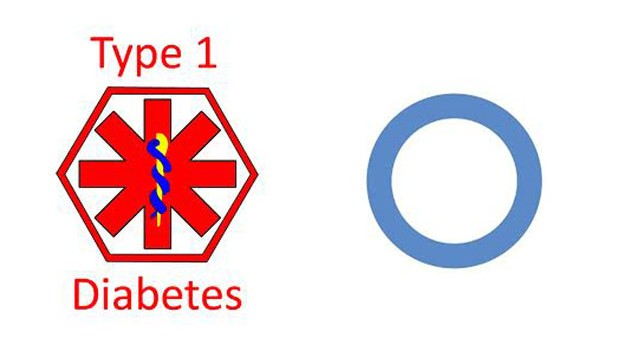 What is Diabetes, Causes, Types & Symptoms of Diabetes