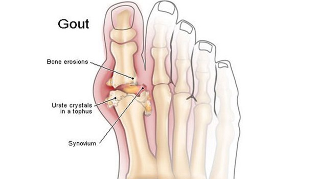 What is Gout? Causes, Symptoms & Signs of Gout