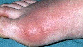 How To Treat Gout, Home Remedies & Medication