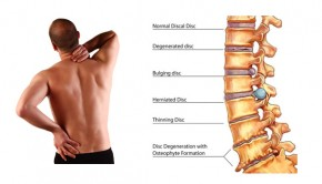 How to Get Rid of Lower Back Pain, Relief & Causes