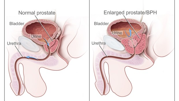 Symptoms of Prostate Cancer, Causes & Treatments