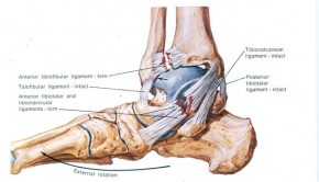 How To Treat A Sprained Ankle Fast, Treatment & Prevention