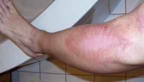 How to Treat Road Rash on Leg or Face