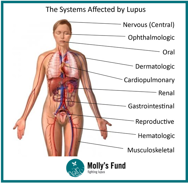 What is Lupus? Causes, Symptoms & Treatment of Lupus
