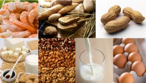 What Are The Most Common Food Allergies? Causes & Symptoms