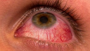 Home Remedies for Pink Eye, Get Rid Of Pink Eye Fast