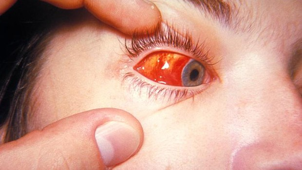 How To Treat Pink Eye, Causes & Symptoms Of Pink Eye