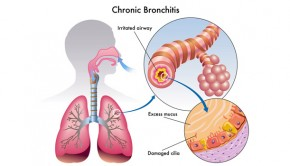How To Treat Bronchitis, Home Remedies