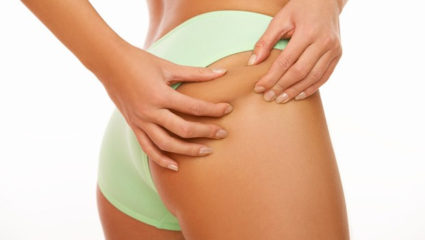 Home Remedies For Cellulite, Cellulite Treatments