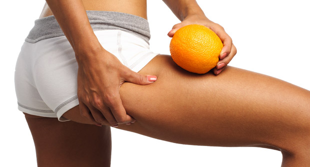 What Is Cellulite ? Cellulite Treatment & Removal
