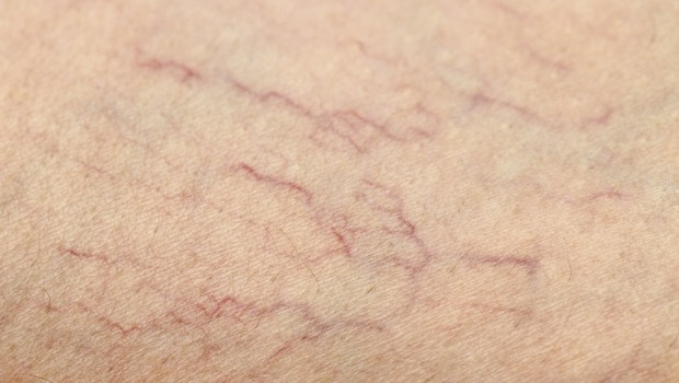 How to Get Rid of Spider Veins On Legs & Face