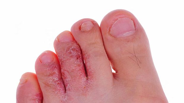 Home Remedies For Athlete's Foot -Home Remedies -Fast Home ...