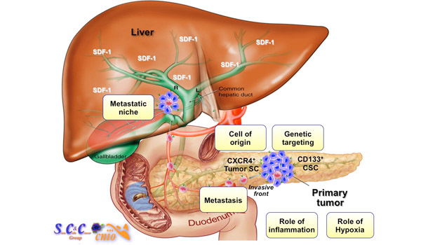 What Is Pancreatic Cancer?  Causes & Symptoms