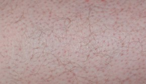 How to Get Rid of Keratosis Pilaris, Home Remedies