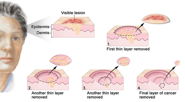 Skin Cancer Causes, Types, Symptoms and Signs
