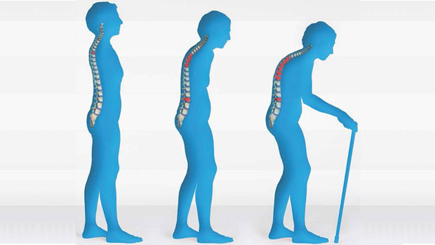 What is Osteoporosis? Symptoms & Treatment