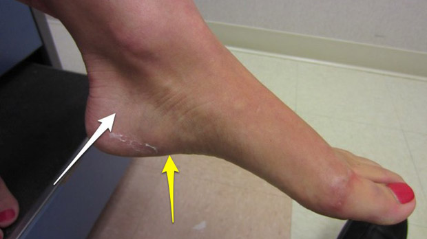 Stress Fracture Foot Symptoms Treatment Amp Prevention