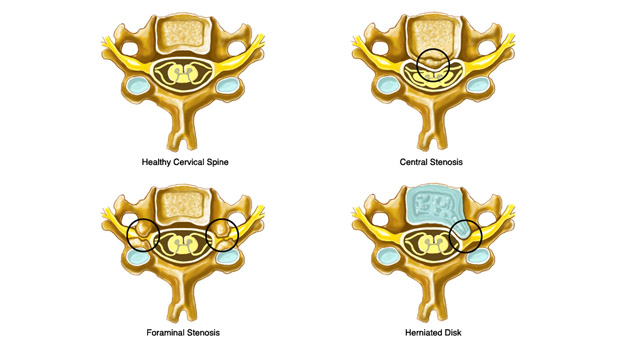 Lumbar & Cervical Spinal Stenosis Symptoms and Treatment