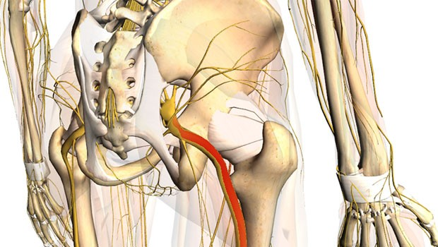 Sciatic Nerve Pain Causes, Symptoms, Treatment & Relief