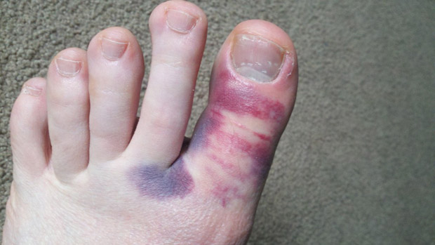 How To Treat a Broken Toe