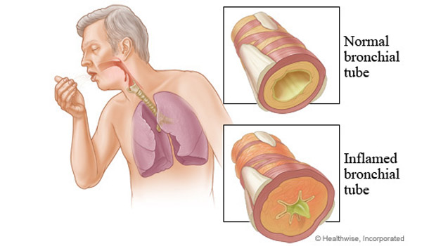 Lung Cancer Stages, Causes, Symptoms & Treatment