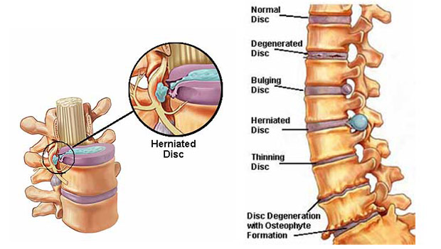 Natural Remedy For Bulging Back Discs