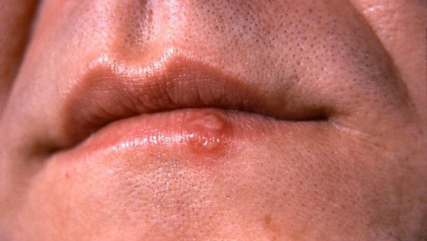 Oral herpes how to avoid