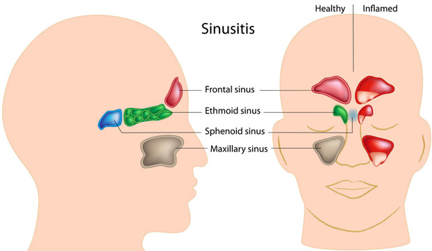 Home Remedies For Chest, Nasal & Sinus Congestion