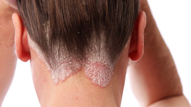 Home Remedies For Scalp, Guttate & Plaque Psoriasis