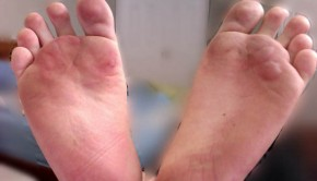 How to Treat a Foot Blister
