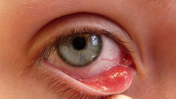 How to Get Rid of a Stye