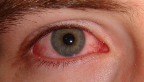 What Causes Pink Eye? How to Treat Pink Eye?